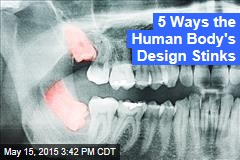 5 Ways the Human Body's Design Stinks