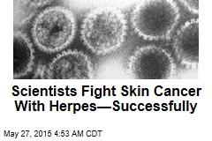 New Skin Cancer Hope: Herpes?