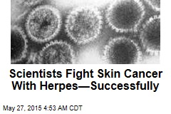 New Skin Cancer Hope: Herpes?
