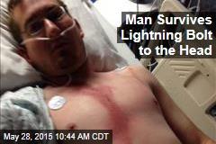 Man Survives Lightning Bolt to the Head