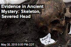 Headless Skeleton Points to Ancient Mystery