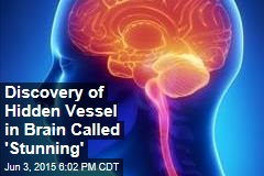 Discovery of Hidden Vessel in Brain Called 'Stunning'