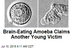 Brain-Eating Amoeba Claims Another Young Victim