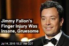 Jimmy Fallon's Finger Injury Was Insane, Gruesome