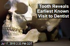 Tooth Reveals Earliest Known Visit to Dentist
