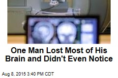 One Man Lost Most of His Brain and Didn't Even Notice