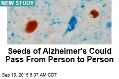 Seeds of Alzheimer's Could Pass From Person to Person