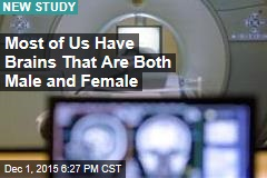 Study: Most of Us Have Brains That Are Both Male and Female