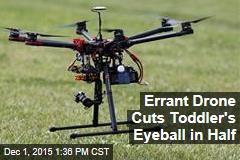 Errant Drone Cuts Toddler's Eyeball in Half