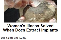 Woman's Illness Solved When Docs Extract Implants