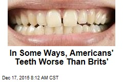In Some Ways, Americans' Teeth Worse Than Brits'