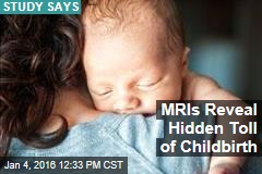 MRIs Reveal Hidden Toll of Childbirth