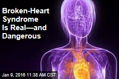 Broken-Heart Syndrome Is Real—and Dangerous