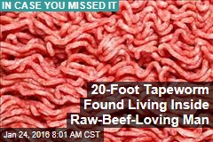20-Foot Tapeworm Found Living Inside Man