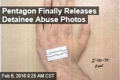 Pentagon Finally Releases Detainee Abuse Photos