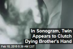 In Sonogram, Twin Appears to Clutch Dying Brother's Hand