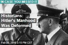 Historians: Hitler's Manhood Was Small, Deformed