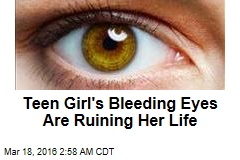 Teen Girl's Bleeding Eyes Are Ruining Her Life