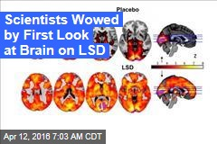 Scientists Wowed by First Look at Brain on LSD