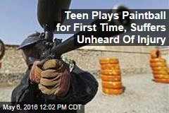 Teen Plays Paintball for First Time, Suffers Unheard Of Injury
