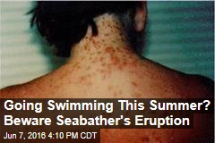 Going Swimming This Summer? Beware Seabather's Eruption