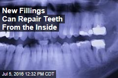 New Fillings Can Repair Teeth From the Inside