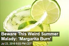 Beware 'Margarita Burn'