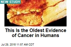 This Is the Oldest Evidence of Cancer in Humans