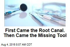 First Came the Root Canal. Then Came the Missing Tool