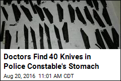 Doctors Find 40 Knives in Police Man's Stomach