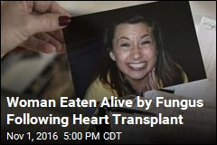 Woman Eaten Alive by Fungus Following Heart Transplant