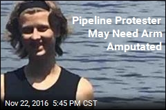 Dad Says Daughter May Lose Arm Thanks to Cops at Pipeline Protest