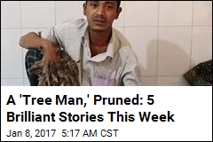 A 'Tree Man,' Pruned: 5 Brilliant Stories This Week