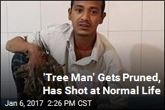 'Tree Man' Gets Pruned, Has Shot at Normal Life