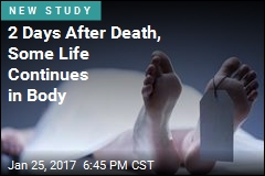 Days After Death, a Body Remains Alive