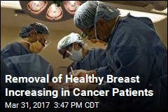 More Breast Cancer Patients Are Removing Healthy Breast