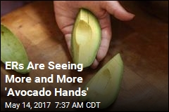 ERs Are Seeing More and More 'Avocado Hands'