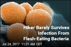 Hiker Barely Survives Infection From Flesh-Eating Bacteria