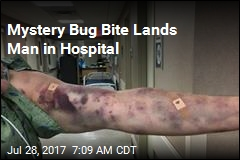 Bruises Spread Rapidly After Mystery Bug Bites