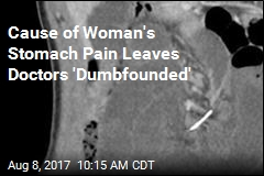Cause of Woman's Stomach Pain Leaves Doctors 'Dumbfounded'
