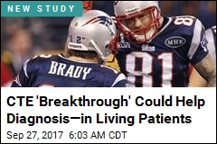 CTE 'Breakthrough' Could Help Diagnosis—in Living Patients