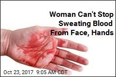 Woman Can't Stop Sweating Blood From Face, Hands