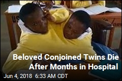 Beloved Tanzanian Conjoined Twins Dead at 21