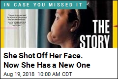 She Shot Off Her Face. Now She Has a New One