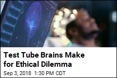 Lab-Grown Brain Tissue Creates Ethical Quandary