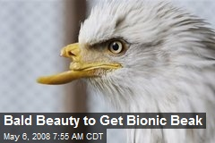 Bald Beauty to Get Bionic Beak