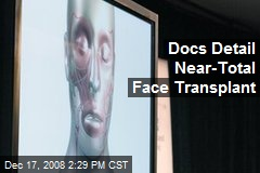 Docs Detail Near-Total Face Transplant