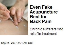 Even Fake Acupuncture Best for Back Pain