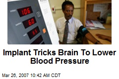 Implant Tricks Brain To Lower Blood Pressure