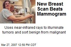 New Breast Scan Beats Mammogram